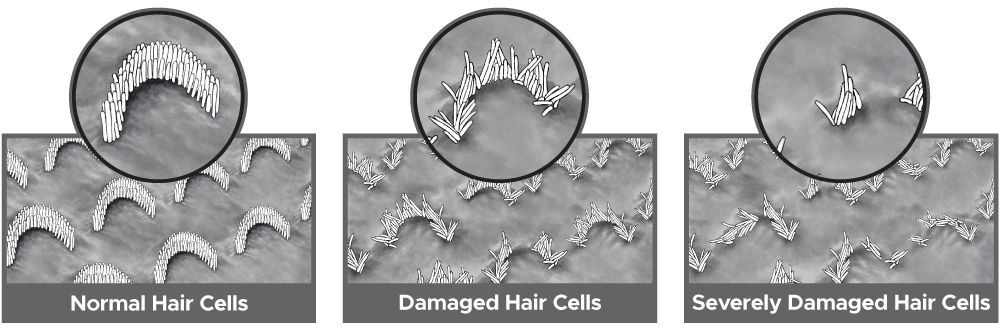 normal and damaged inner ear cochlea hair cells